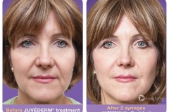 juvederm-before-after1