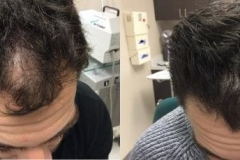Platelet-Rich Plasma (PRP) Before and 3 months After