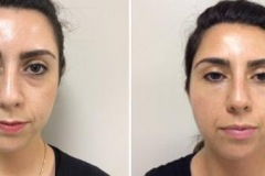 Pre and Post Filler After Photo 33 year old woman treated with Volbella on her tear troughs.